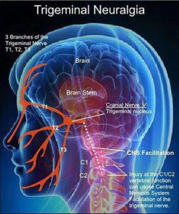Trigeminal Neuralgia Nerves